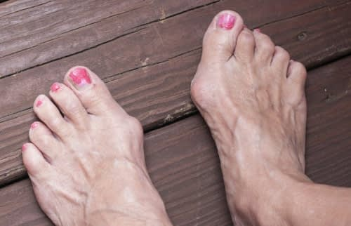 foot with bunions